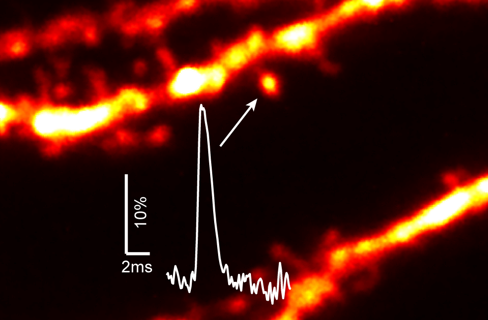 Voltage-sensitive dye imaging of single dendritic spines